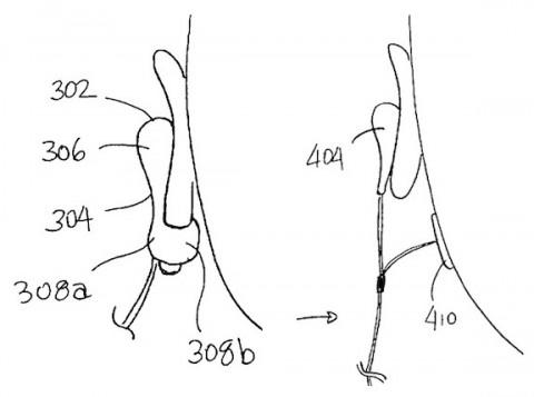 Auricolari Apple brevetto