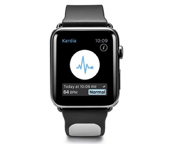 Kardia Band, il cinturino con elettrocardiografo per Apple Watch
