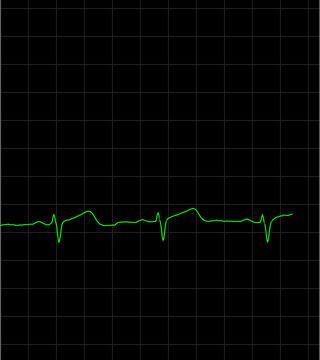 Smart Cardio