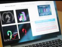 L'intelligenza artificiale aiuta i dottori, ora legge e comprende le radiografie