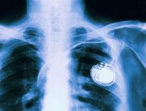 Migliaia di bug individuati nel codice dei pacemaker
