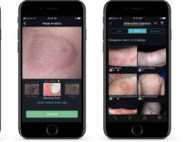 VisualDx, l'app che piace a Tim Cook mostra il futuro della medicina