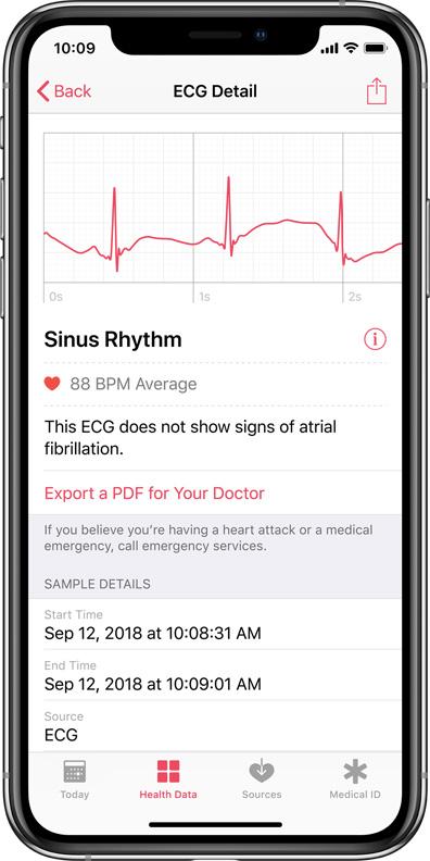 Apple Watch 4, la certificazione dell'FDA è merito dell'app Heart Study