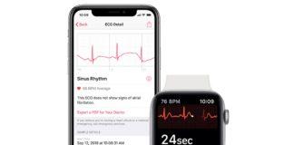 Con watchOS 5.1.2 sarà attiva l'app ECG su Apple Watch Series 4