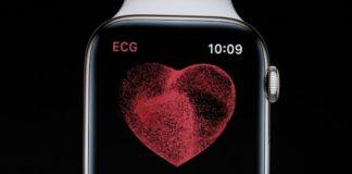 Apple accetterà restituzioni di Apple Watch fino a 45 giorni