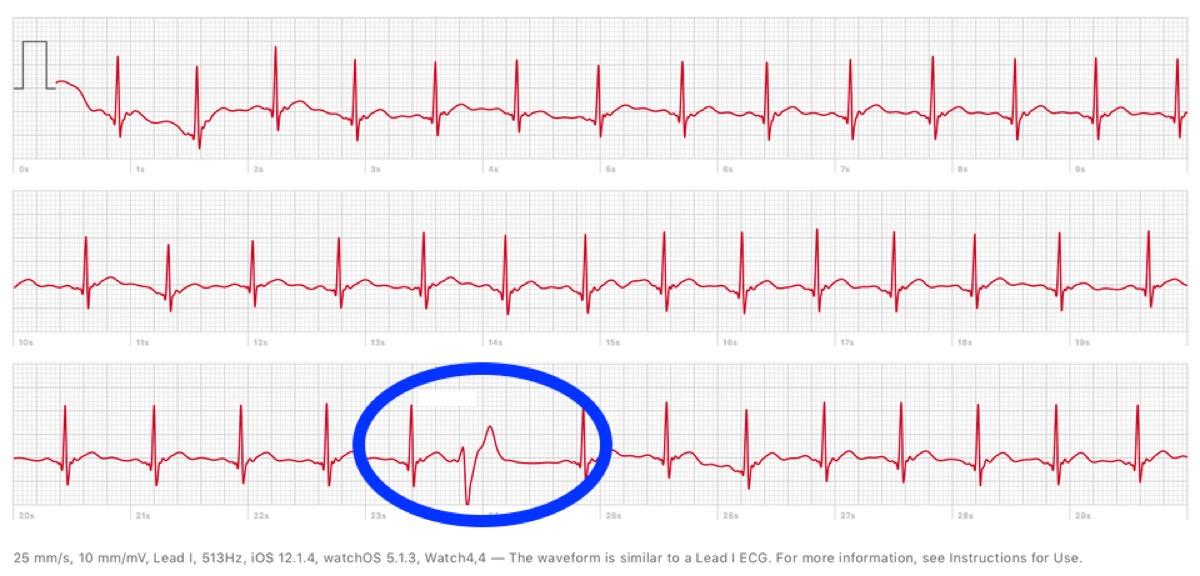 Apple Watch 4 individua contrazioni ventricolari premature: infermiera impressionata