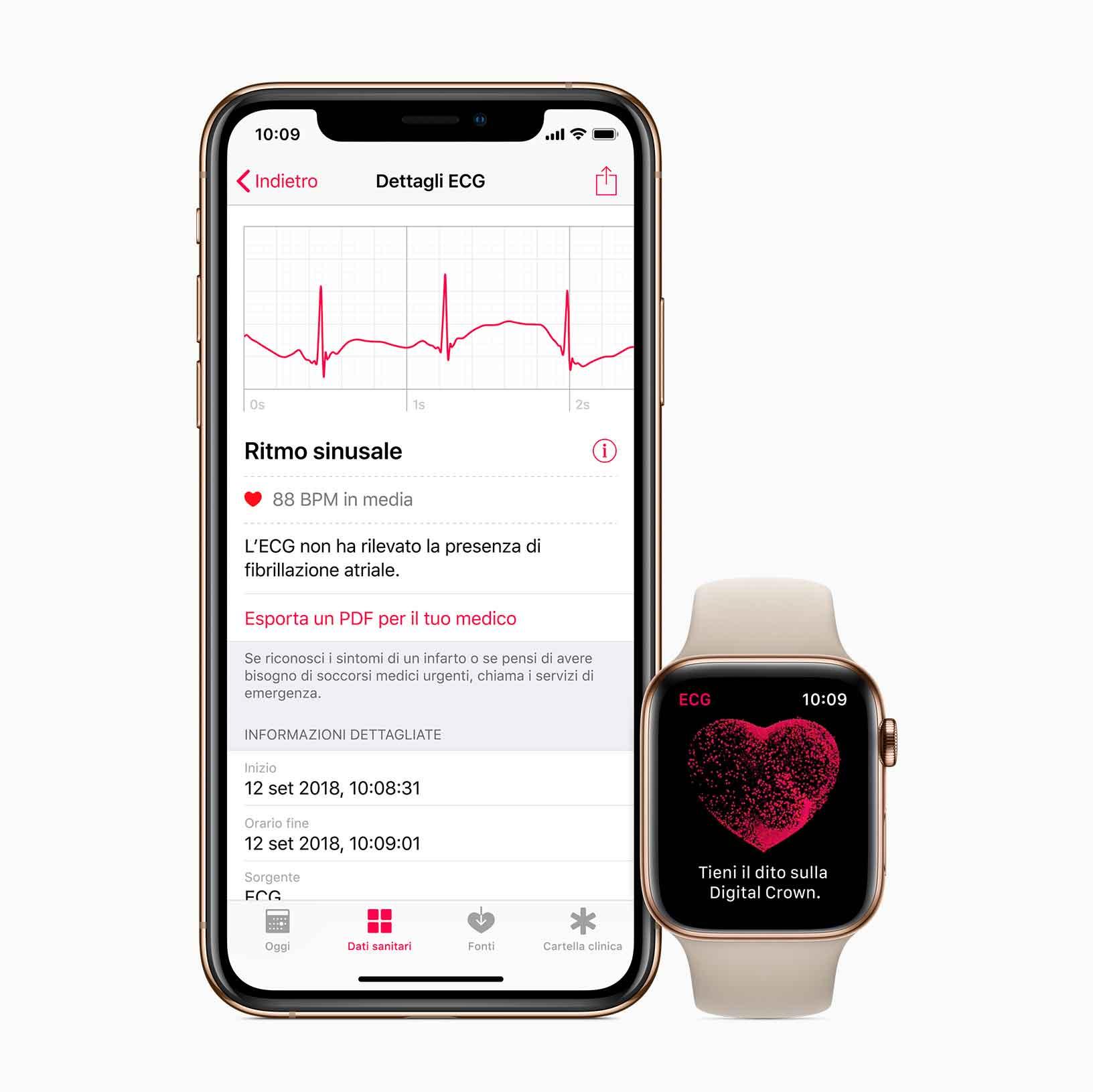Tutte le registrazioni, le relative classificazioni e gli eventuali sintomi riscontrati vengono archiviati in sicurezza nell'app Salute su iPhone.
