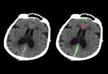 L'intelligenza artificiale individua le emorragie cerebrali