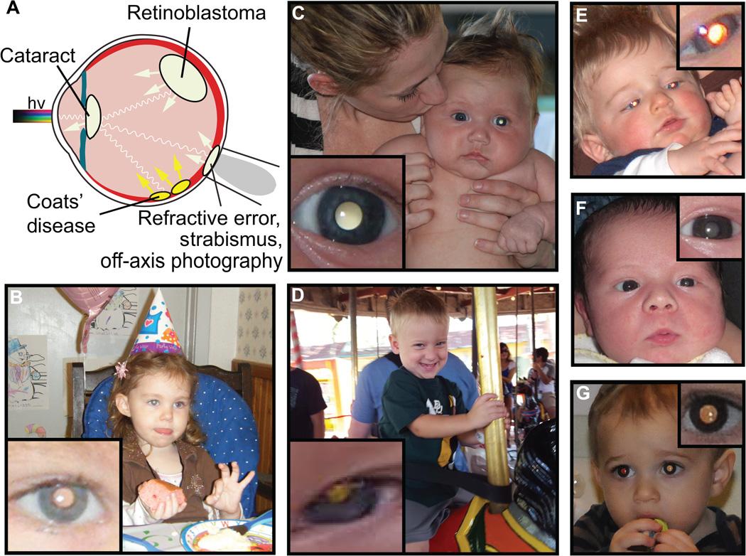 Un'app per smartphone è in grado di individuare malattie agli occhi partendo da una foto