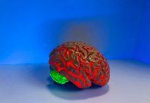 Creato un sistema AI in grado di predire accuratamente le crisi epilettiche