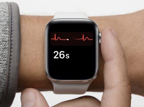 Prevenzione della fibrillazione atriale con Apple Watch: più di 4.300 ECG in due giorni