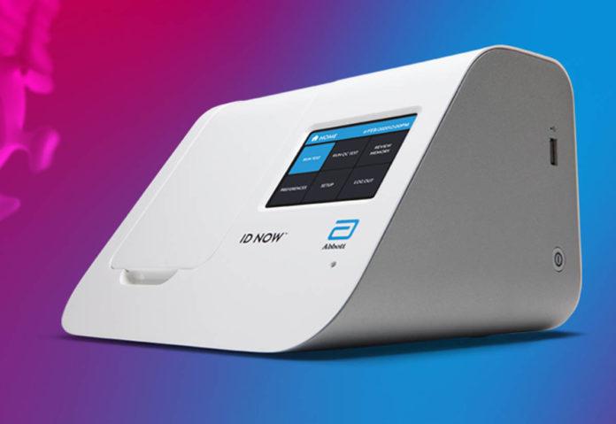COVID-19, una tecnologia promette il test in 5 minuti e non serve un laboratorio