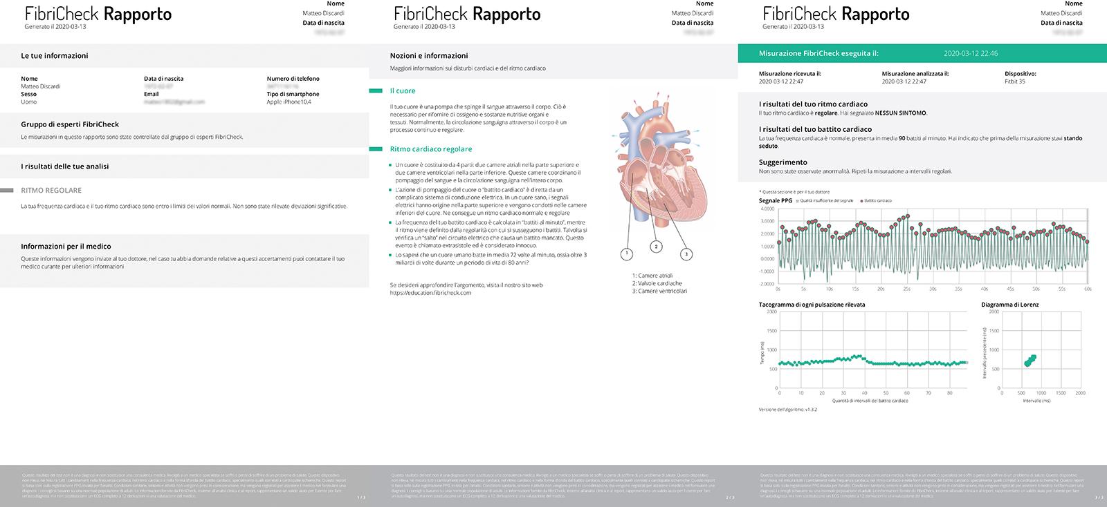 Recensione Fibricheck con Fitbit Versa 2