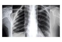 Un modello di intelligenza artificiale legge le radiografie e fa prognosi nei pazienti affetti da COVID-19