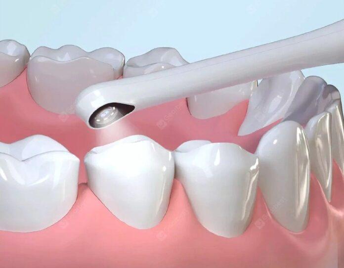 Nessuna caria potrà più sfuggirvi con lo specchio da dentista wi-fi smart