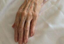 L'Apple Watch può essere sfruttato per tracciare i sintomi del morbo di Parkinson