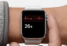 L'Australia approva la funzione ECG di Apple Watch