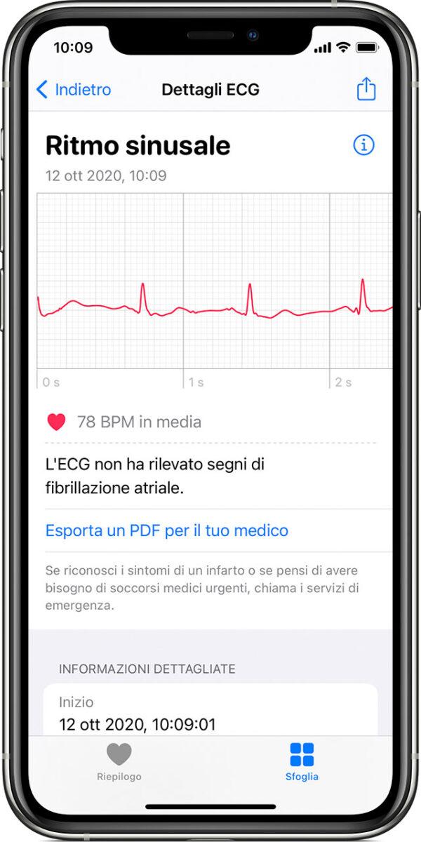 Apple: causa perché non consente a terze parti analisi del ritmo cardiaco su Apple Watch